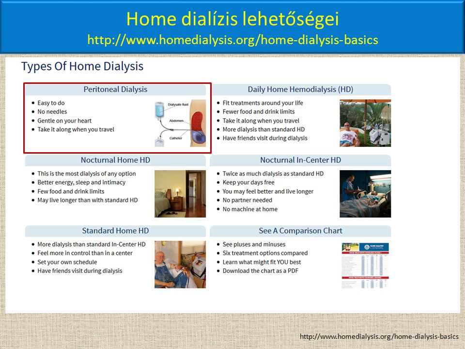 Home dialízis lehetőségei http://www.homedialysis.org/home-dialysis-basics http://www.homedialysis.org/home-dialysis-basics