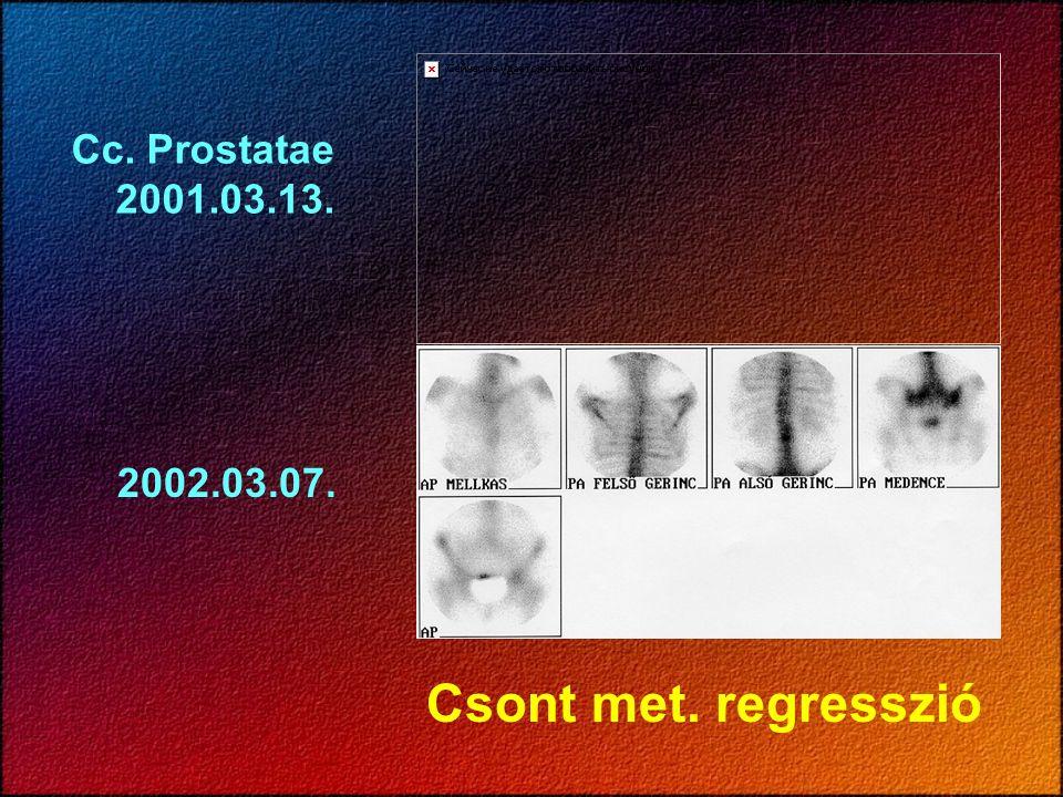 Csont met. regresszió Cc. Prostatae 2001.03.13. 2002.03.07.