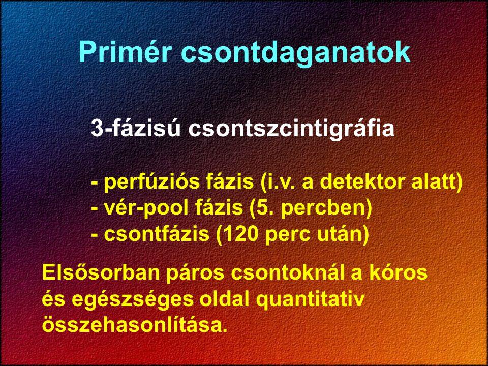 Primér csontdaganatok 3-fázisú csontszcintigráfia - perfúziós fázis (i.v. a detektor alatt) - vér-pool fázis (5. percben) - csontfázis (120 perc után)