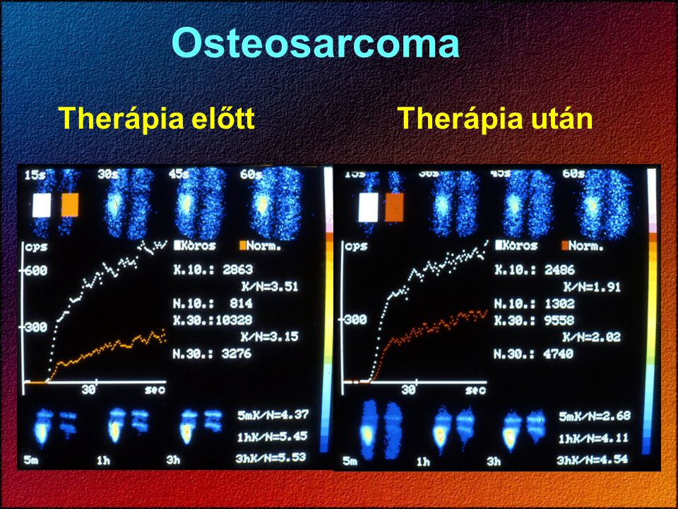 Osteosarcoma Therápia előttTherápia után