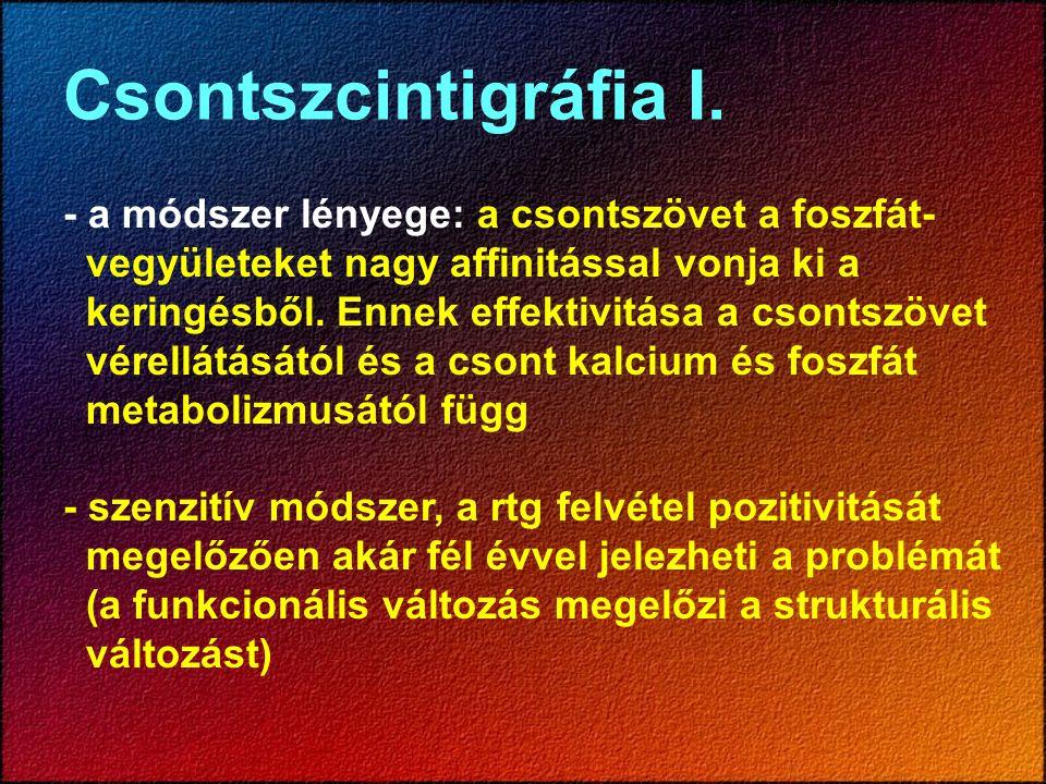 Csontszcintigráfia I. - a módszer lényege: a csontszövet a foszfát- vegyületeket nagy affinitással vonja ki a keringésből. Ennek effektivitása a csont