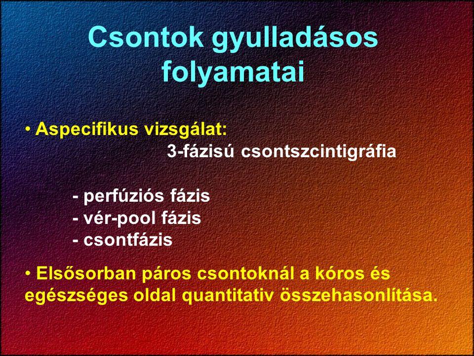 Csontok gyulladásos folyamatai Aspecifikus vizsgálat: 3-fázisú csontszcintigráfia - perfúziós fázis - vér-pool fázis - csontfázis Elsősorban páros cso