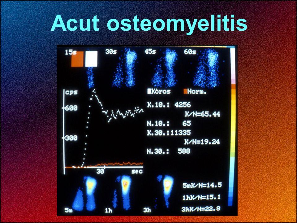 Acut osteomyelitis