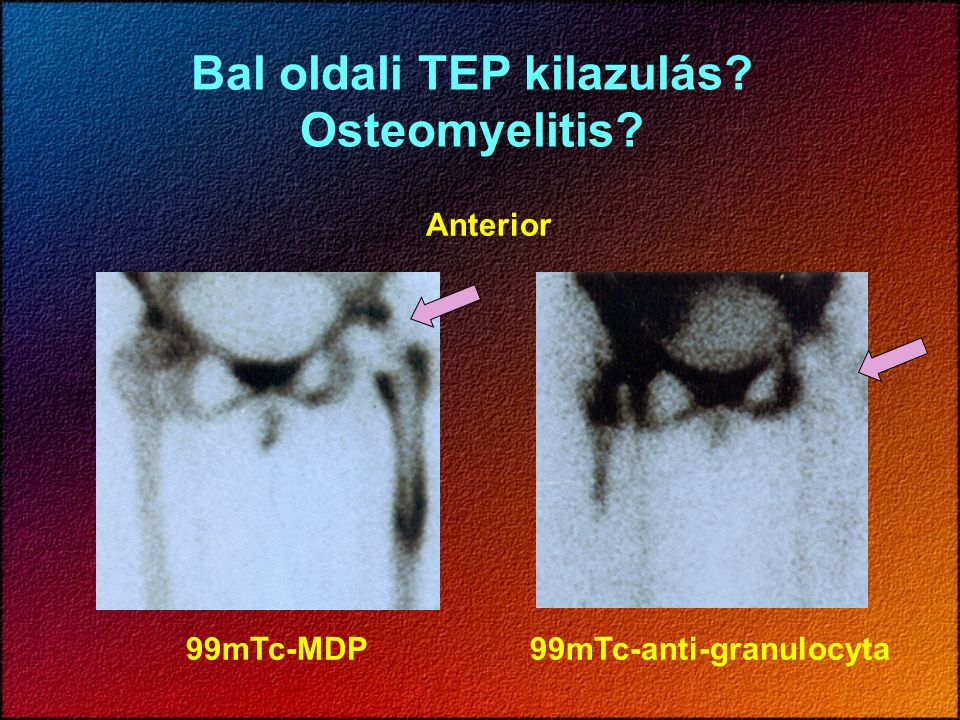 Bal oldali TEP kilazulás? Osteomyelitis? Anterior 99mTc-MDP99mTc-anti-granulocyta
