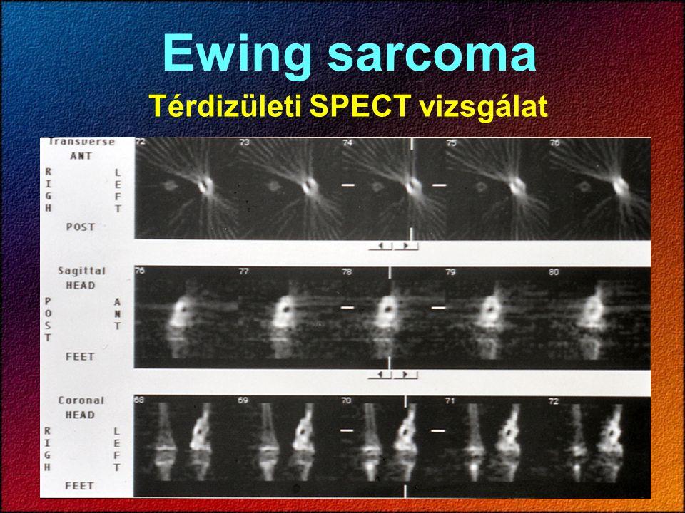 Térdizületi SPECT vizsgálat Ewing sarcoma