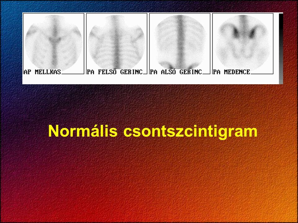 Osteosarcoma tibiae l.s. - 3 fázisú vizsgálat