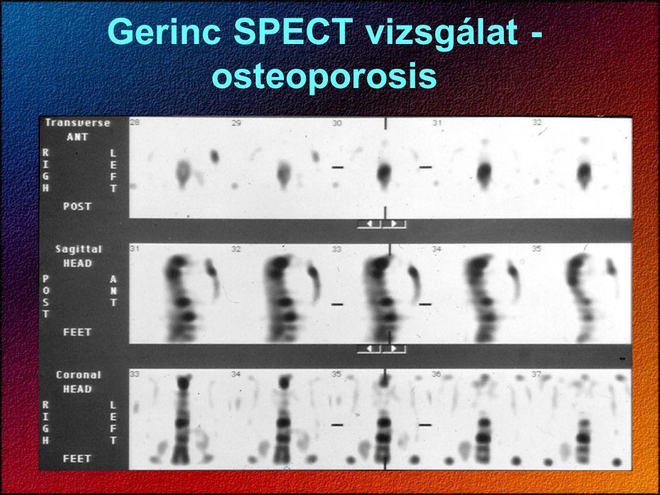 Gerinc SPECT vizsgálat - osteoporosis