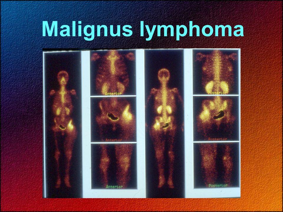 Malignus lymphoma