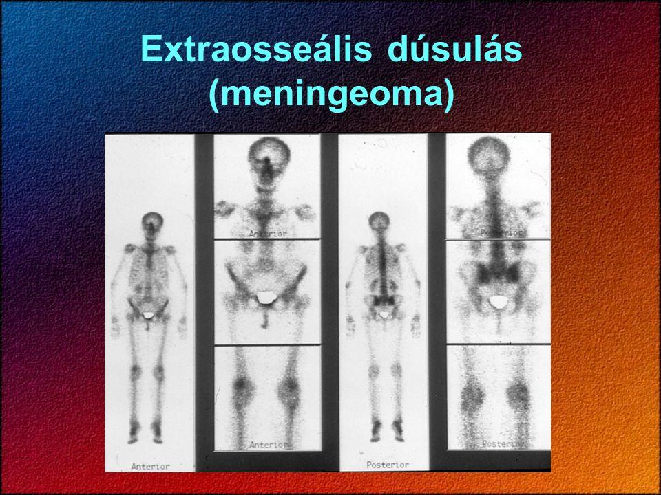 Extraosseális dúsulás (meningeoma)