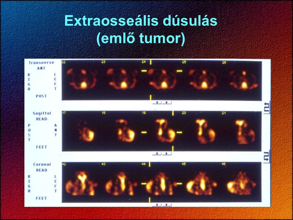 Extraosseális dúsulás (emlő tumor)