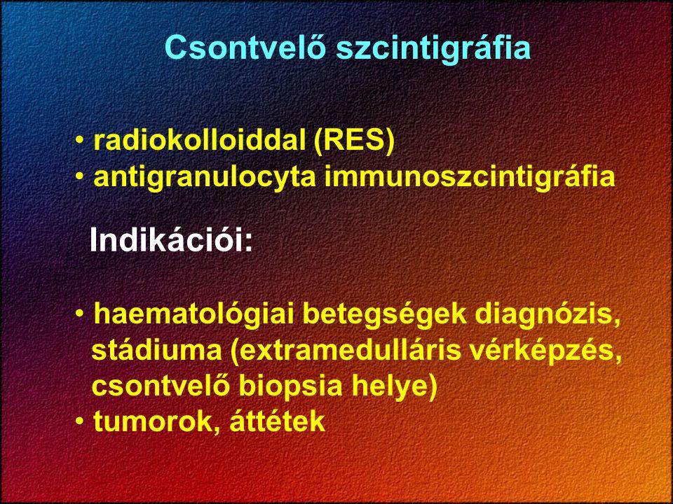 Csontvelő szcintigráfia radiokolloiddal (RES) antigranulocyta immunoszcintigráfia Indikációi: haematológiai betegségek diagnózis, stádiuma (extramedulláris vérképzés, csontvelő biopsia helye) tumorok, áttétek