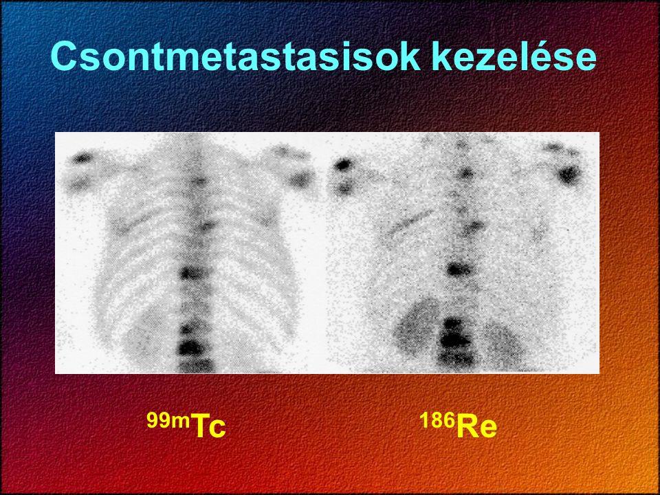 Csontmetastasisok kezelése 99m Tc 186 Re
