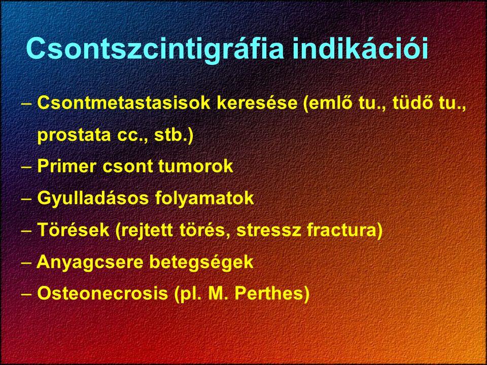Mérlegelendő körülmények Spondylosis, arthrosis, degeneratív folymatok Csigolya kompresszió Scoliosis Extrém obesitás