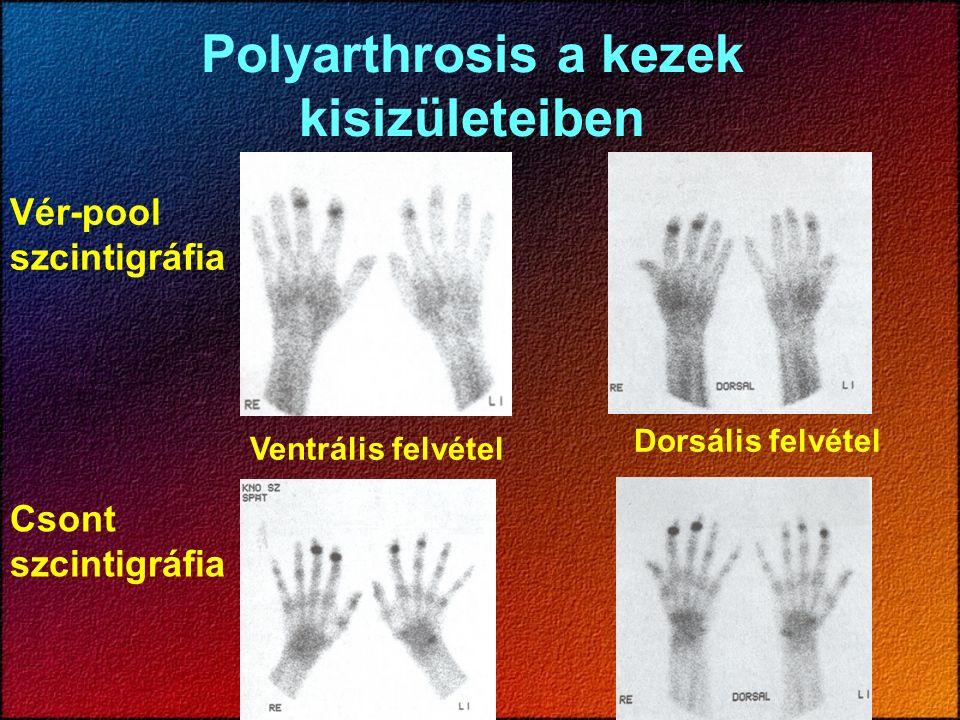 Polyarthrosis a kezek kisizületeiben Vér-pool szcintigráfia Csont szcintigráfia Ventrális felvétel Dorsális felvétel
