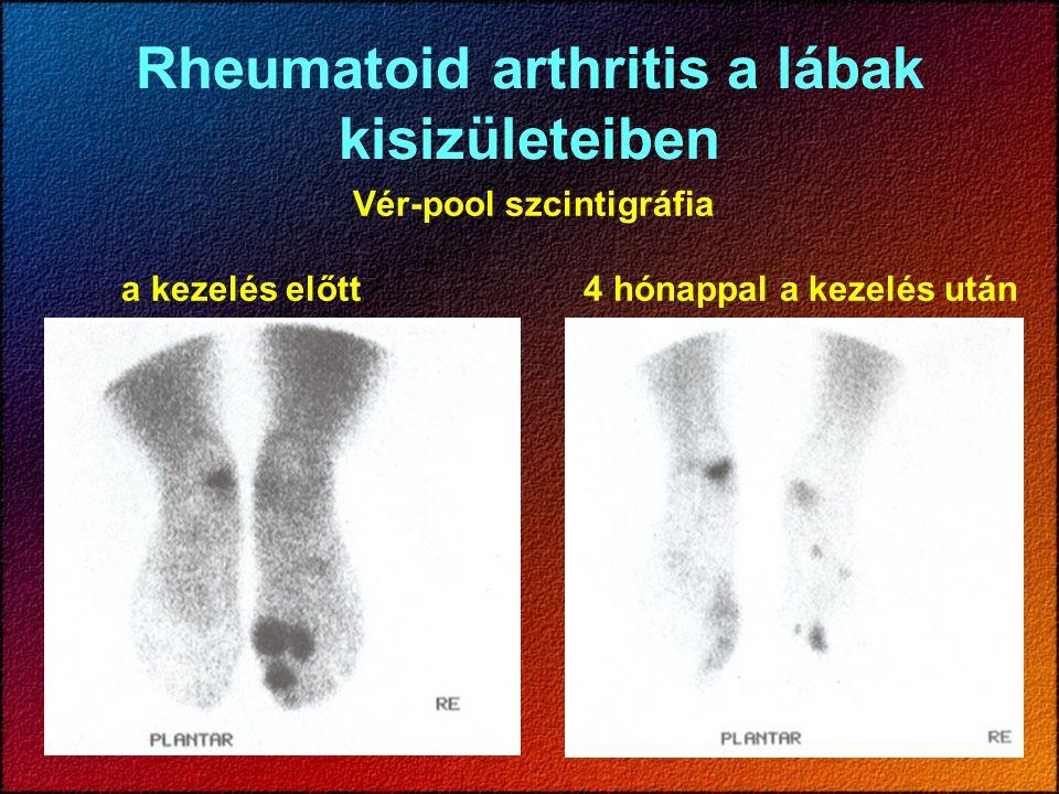 Rheumatoid arthritis a lábak kisizületeiben Vér-pool szcintigráfia a kezelés előtt 4 hónappal a kezelés után