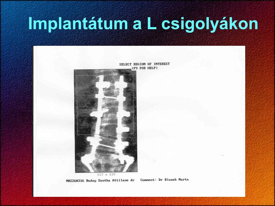 Implantátum a L csigolyákon