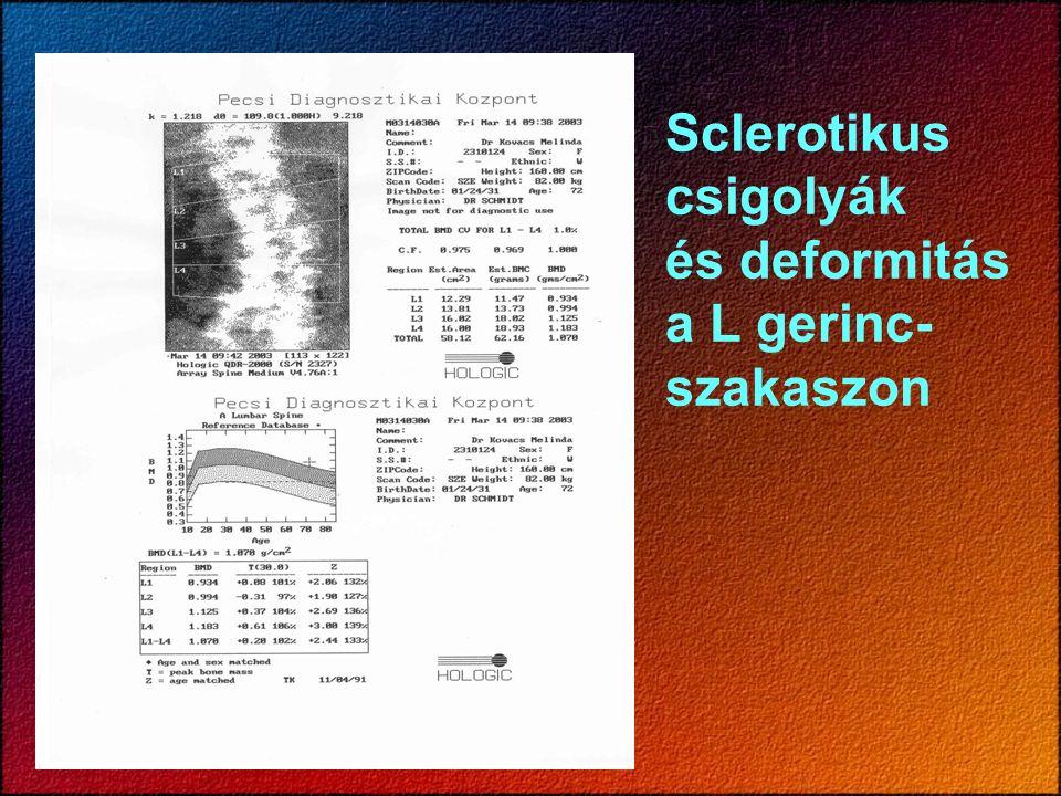 Sclerotikus csigolyák és deformitás a L gerinc- szakaszon