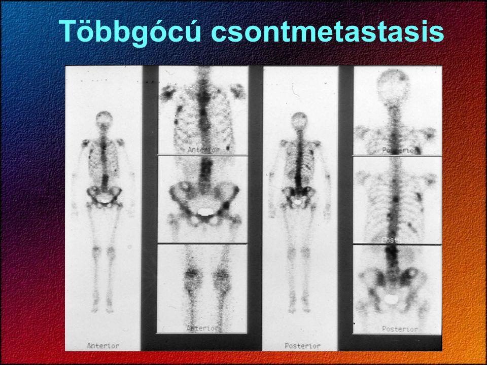 Csontok gyulladásos folyamatai Aspecifikus vizsgálat: 3-fázisú csontszcintigráfia - perfúziós fázis - vér-pool fázis - csontfázis Elsősorban páros csontoknál a kóros és egészséges oldal quantitativ összehasonlítása.