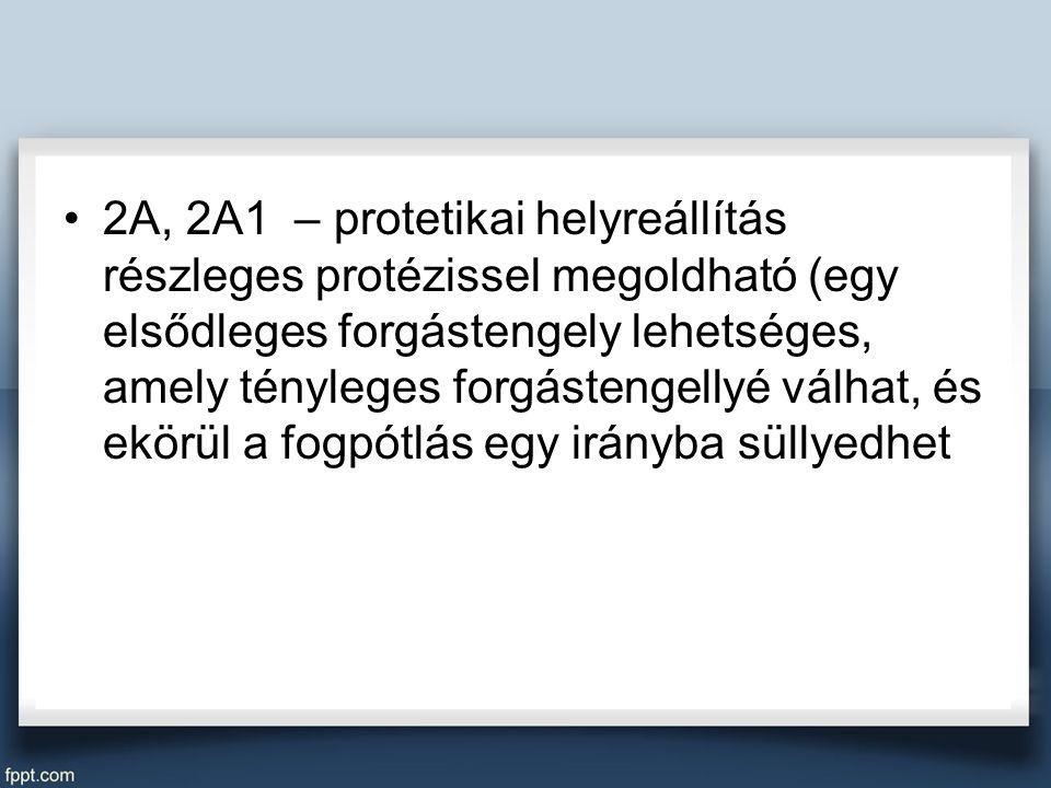 2A, 2A1 – protetikai helyreállítás részleges protézissel megoldható (egy elsődleges forgástengely lehetséges, amely tényleges forgástengellyé válhat, és ekörül a fogpótlás egy irányba süllyedhet