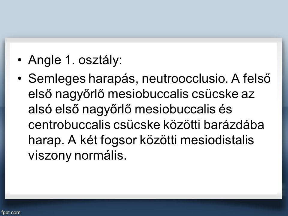 Angle 1. osztály: Semleges harapás, neutroocclusio.