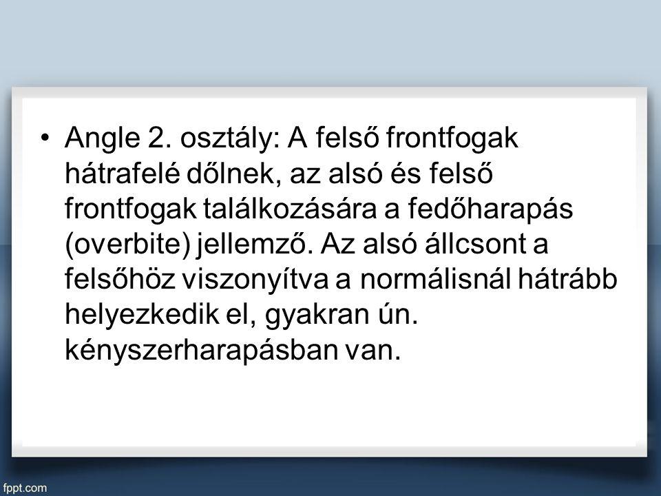 Angle 2.