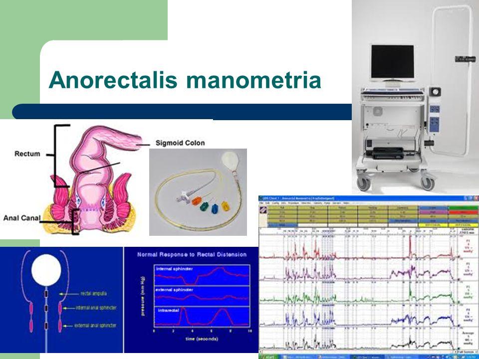 Anorectalis manometria