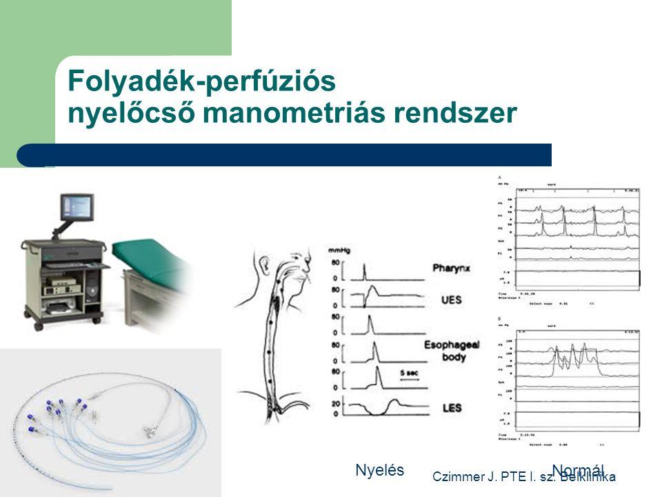 Czimmer J. PTE I. sz. Belklinika Folyadék-perfúziós nyelőcső manometriás rendszer Normál Nyelés