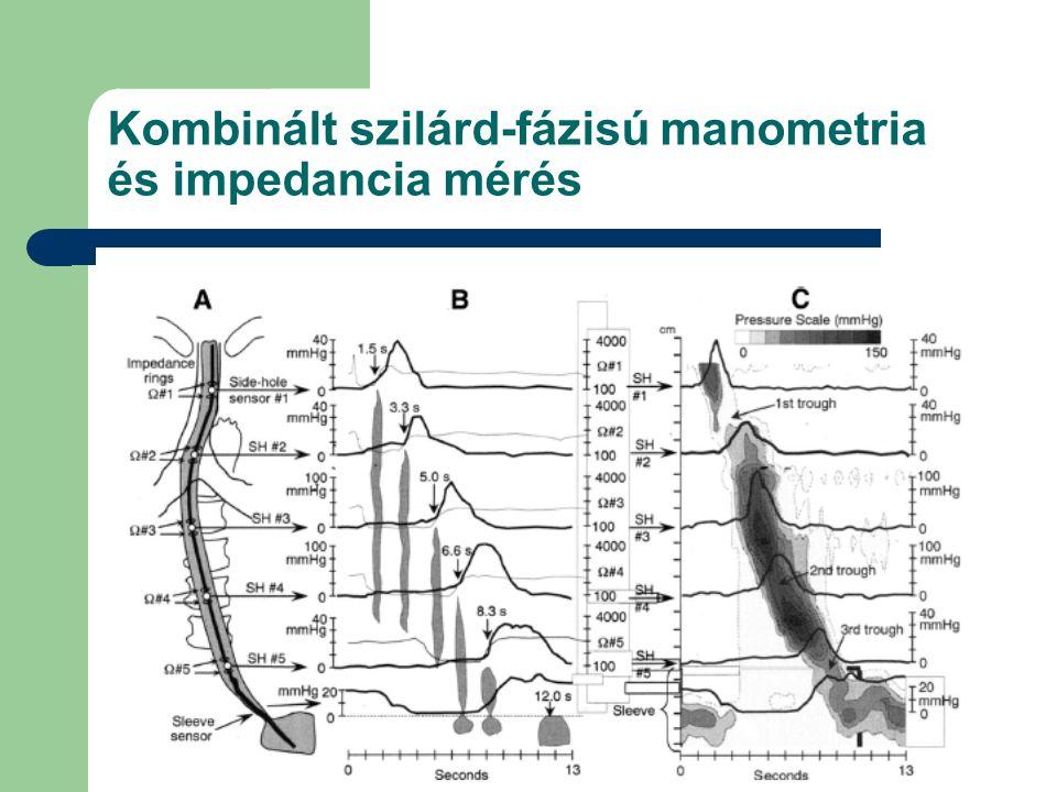 Czimmer J. PTE I. sz. Belklinika Kombinált szilárd-fázisú manometria és impedancia mérés