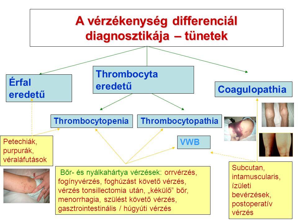 """Thrombocytopenia Érfal eredetű Coagulopathia Thrombocytopathia Bőr- és nyálkahártya vérzések: orrvérzés, fogínyvérzés, foghúzást követő vérzés, vérzés tonsillectomia után, """"kékülő bőr, menorrhagia, szülést követő vérzés, gasztrointestinális / húgyúti vérzés Subcutan, intamuscularis, ízületi bevérzések, postoperatív vérzés VWB Petechiák, purpurák, véraláfutások Thrombocyta eredetű A vérzékenység differenciál diagnosztikája – tünetek"""