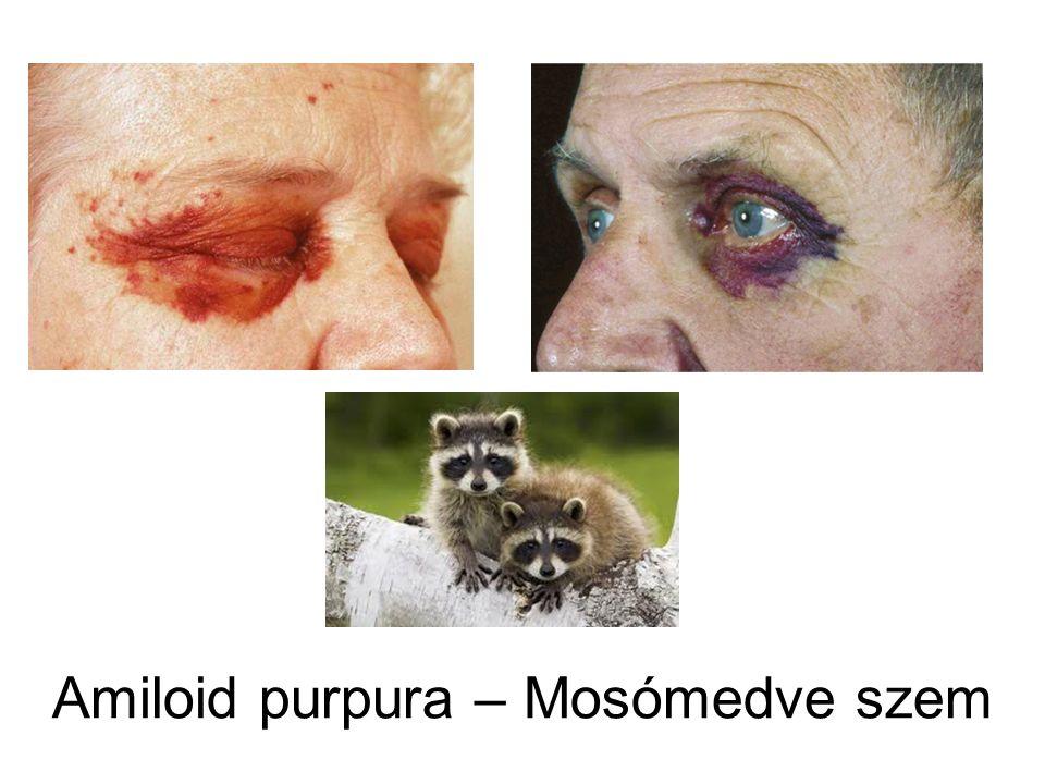 Amiloid purpura – Mosómedve szem