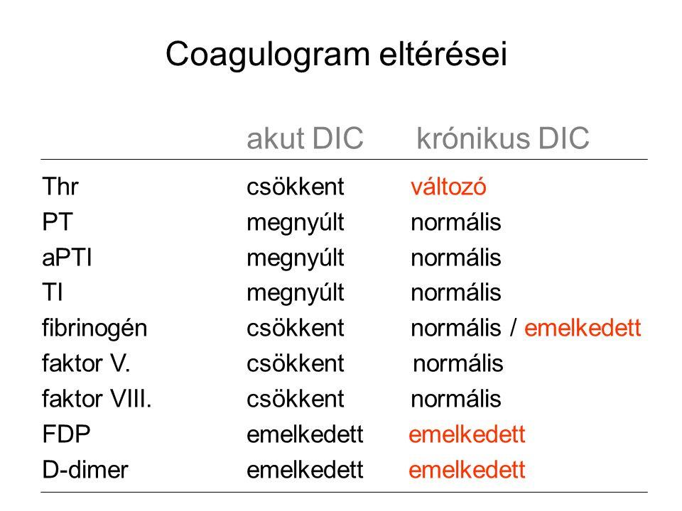 Coagulogram eltérései akut DIC krónikus DIC Thrcsökkent változó PTmegnyúlt normális aPTImegnyúlt normális TImegnyúlt normális fibrinogéncsökkent normális / emelkedett faktor V.csökkent normális faktor VIII.csökkent normális FDPemelkedett emelkedett D-dimeremelkedett emelkedett
