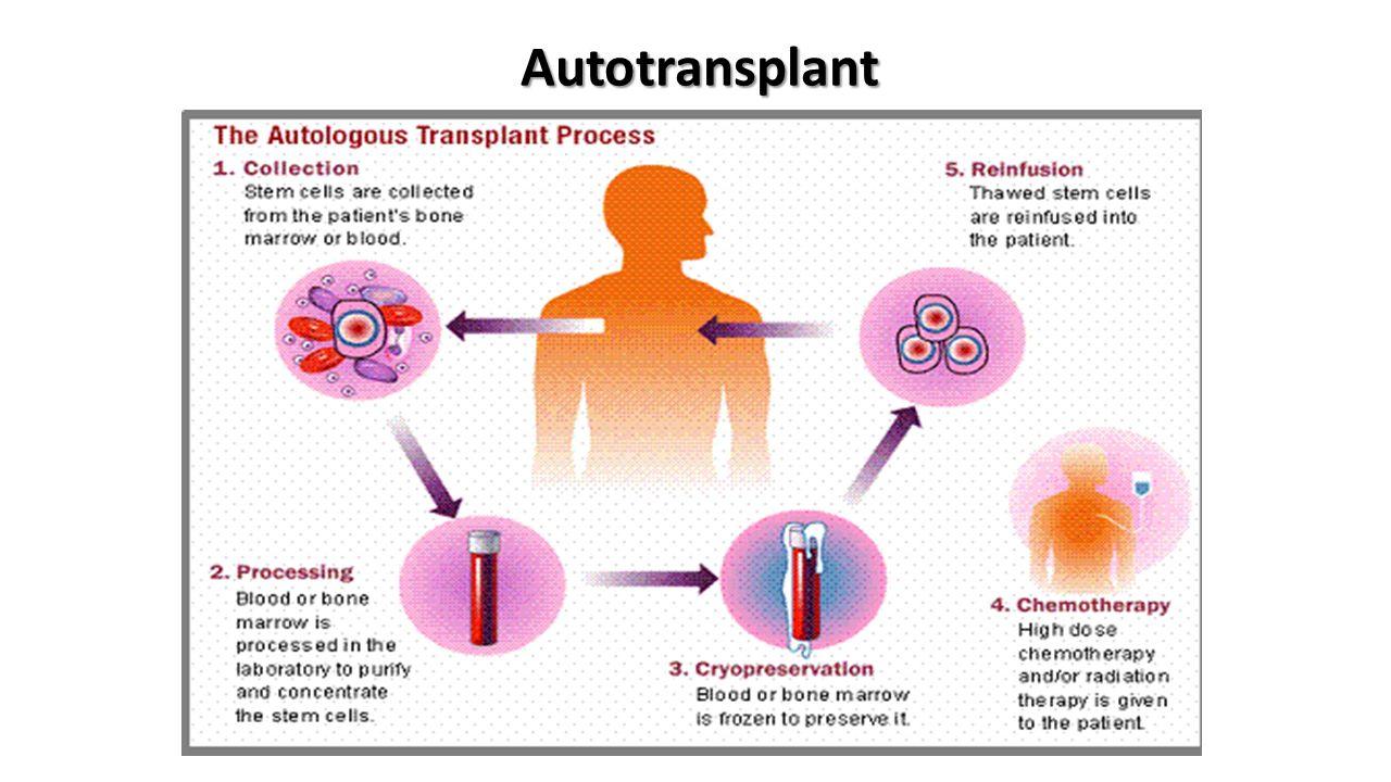 Autotransplant