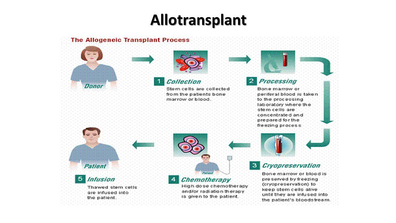Allotransplant