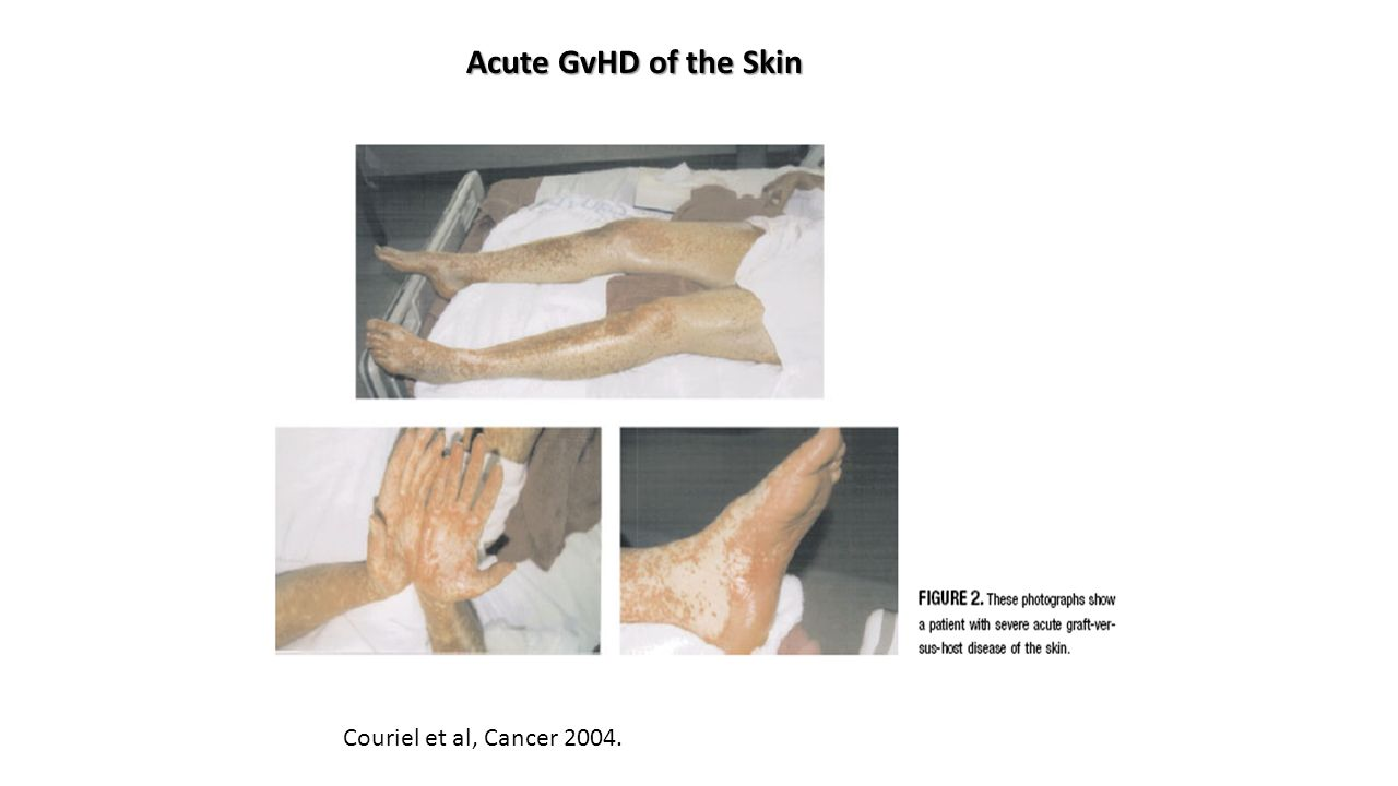 Couriel et al, Cancer 2004. Acute GvHD of the Skin