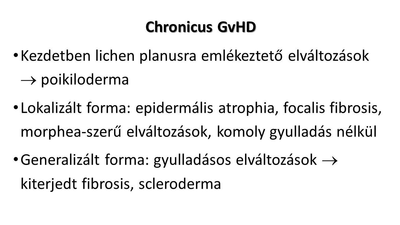 Chronicus GvHD Kezdetben lichen planusra emlékeztető elváltozások  poikiloderma Lokalizált forma: epidermális atrophia, focalis fibrosis, morphea-szerű elváltozások, komoly gyulladás nélkül Generalizált forma: gyulladásos elváltozások  kiterjedt fibrosis, scleroderma