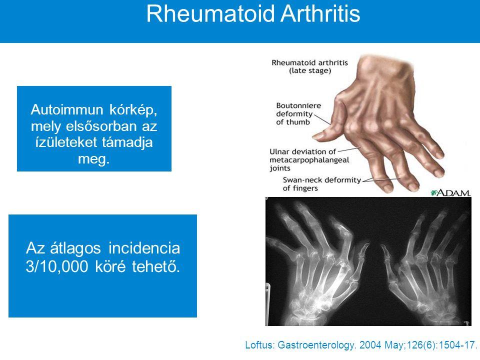 Gyulladásos bélbetegségek A Crohn betegség és az Ulceratív colitis is ebbe a csoportba tartozik.
