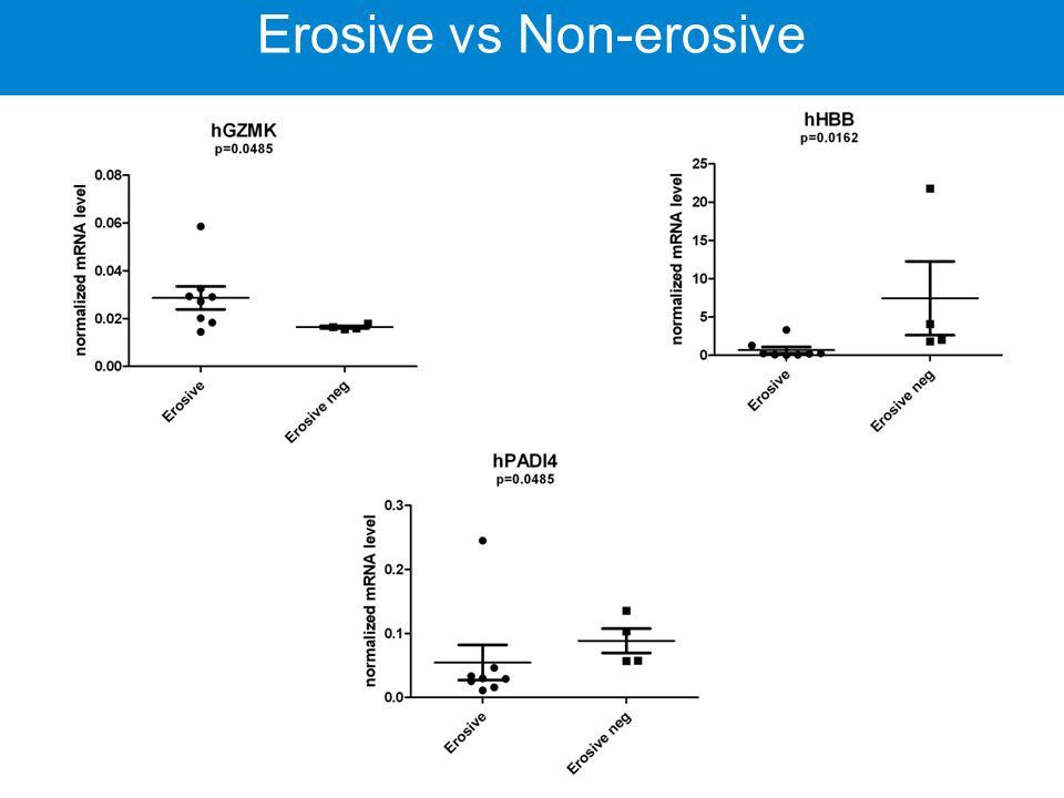 Rheumatoid arthritis Erosive vs Non-erosive