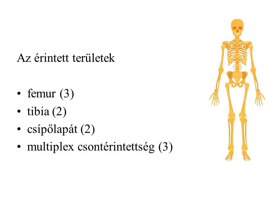 Az érintett területek femur (3) tibia (2) csípőlapát (2) multiplex csontérintettség (3)