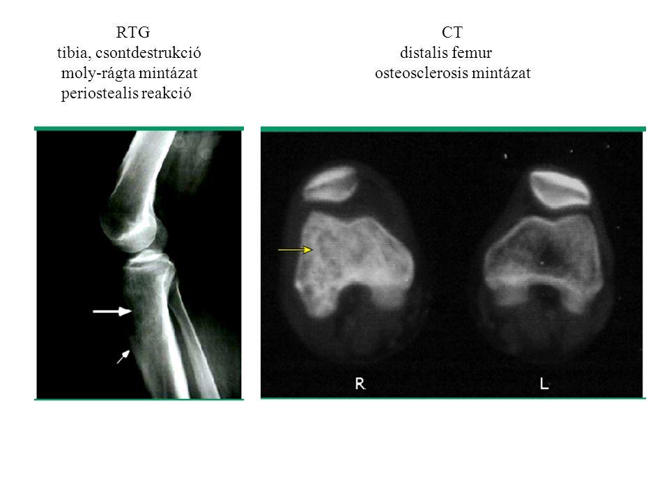 RTGCT tibia, csontdestrukció distalis femur moly-rágta mintázatosteosclerosis mintázat periostealis reakció