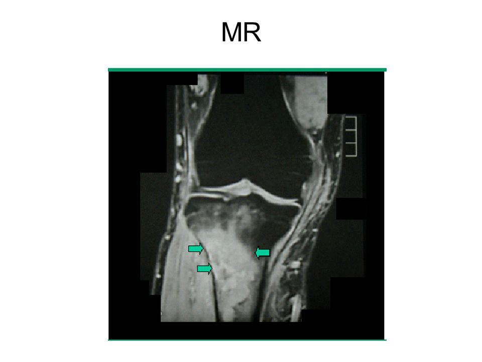 Stádium beosztás - Ann-Arbor klasszifikáció I E : szoliter csontlézió II E : regionális nyirokcsomó érintettség IV: multifokális betegség