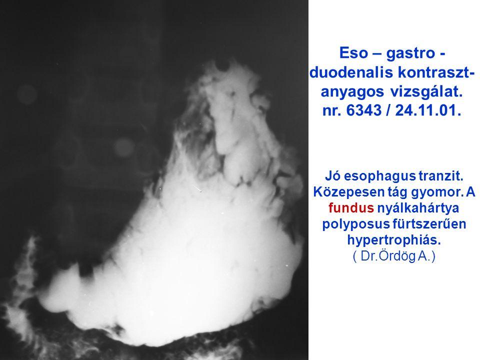 ► ► A gyomor corpusán is látható polyp szerű nyálkahártrya hypertrophia.