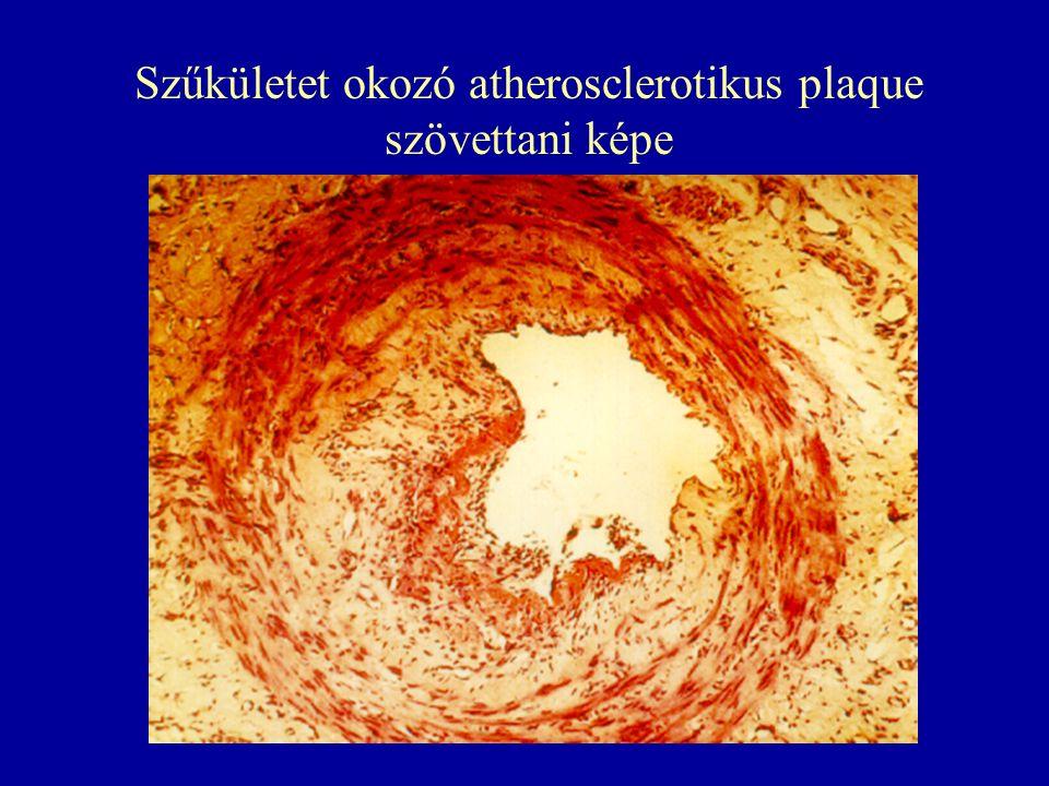 Szűkületet okozó atherosclerotikus plaque szövettani képe