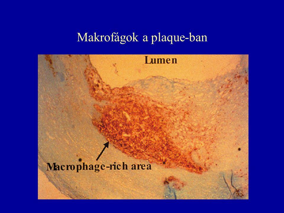 Makrofágok a plaque-ban