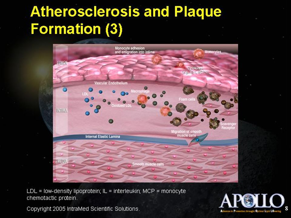 Atherosclerosis and Plaque Formation (3)