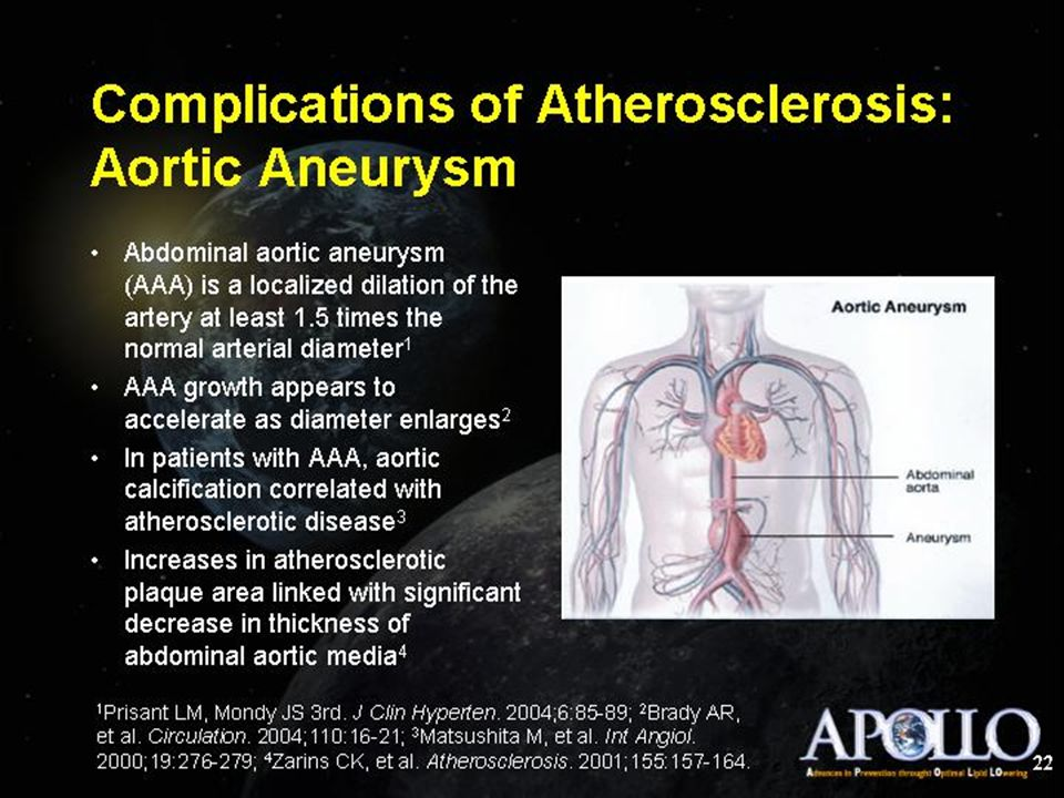 Complications of Atherosclerosis: Aortic Aneurysm