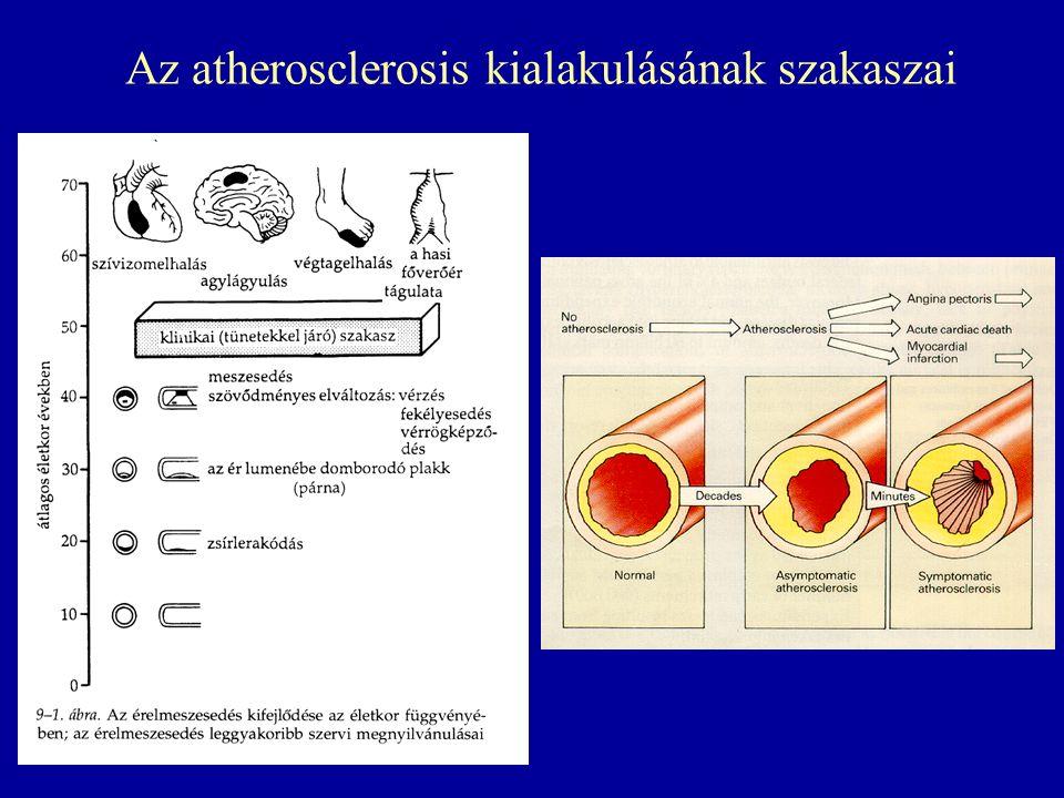 """Cholesterin és CHD: Seven Countries (""""Hét Ország ) Study 0 5 10 15 20 25 30 (2.60)(3.25)(3.90)(4.50)(5.15)(5.80)(6.45)(7.10)(7.75)(8.40)(9.05) TC mg/dL (mmol/L) CHD halálozás (%) 100125150175200225250275300325350 Észak-Európa USA Dél-Európa, Szárazföld Dél-Európa,Mediterran Szibéria Japán"""