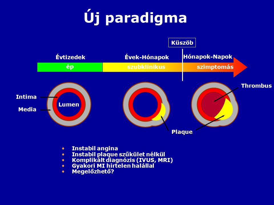 Új paradigma ép szubklinikusszimptomás Küszöb ÉvtizedekÉvek-Hónapok Hónapok-Napok Intima Media Plaque Thrombus Lumen Instabil angina Instabil plaque szűkület nélkül Komplikált diagnózis (IVUS, MRI) Gyakori MI hirtelen halállal Megelőzhető