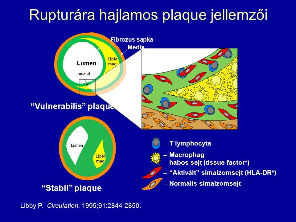 Rupturára hajlamos plaque jellemzői Libby P. Circulation.