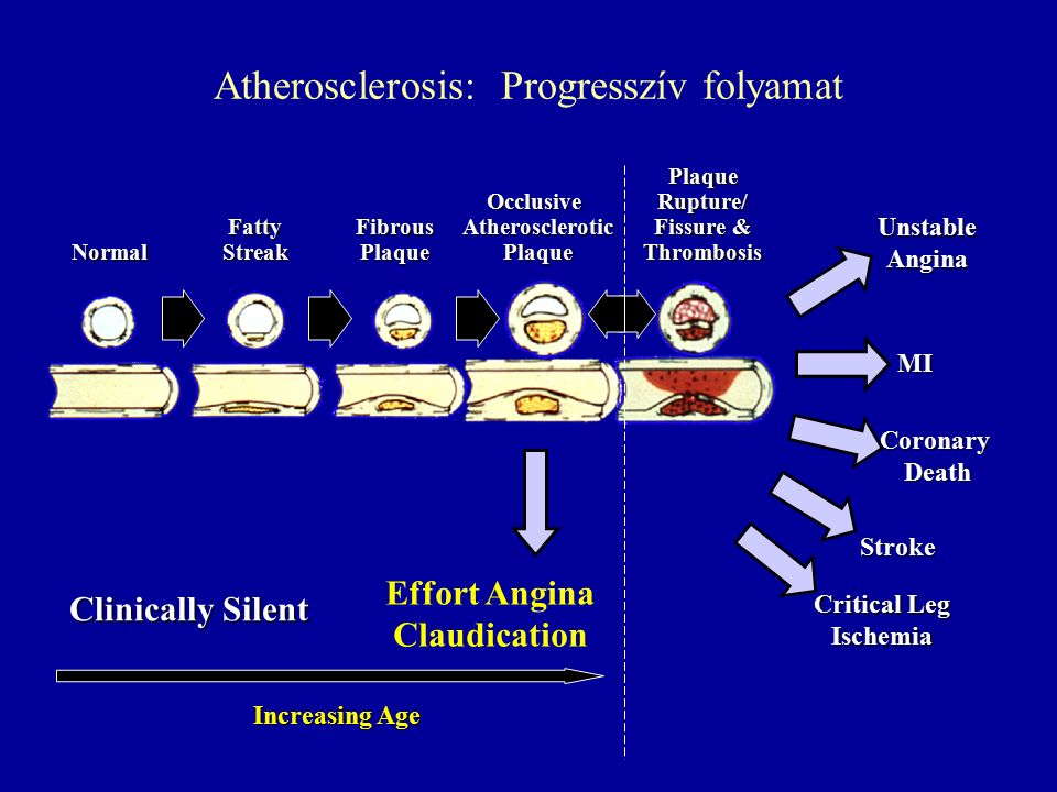 Normal Fatty Streak Fibrous Plaque Occlusive Atherosclerotic Plaque Plaque Rupture/ Fissure & Thrombosis MI Stroke Critical Leg Ischemia Clinically Silent CoronaryDeath Increasing Age Effort Angina Claudication UnstableAngina Atherosclerosis: Progresszív folyamat