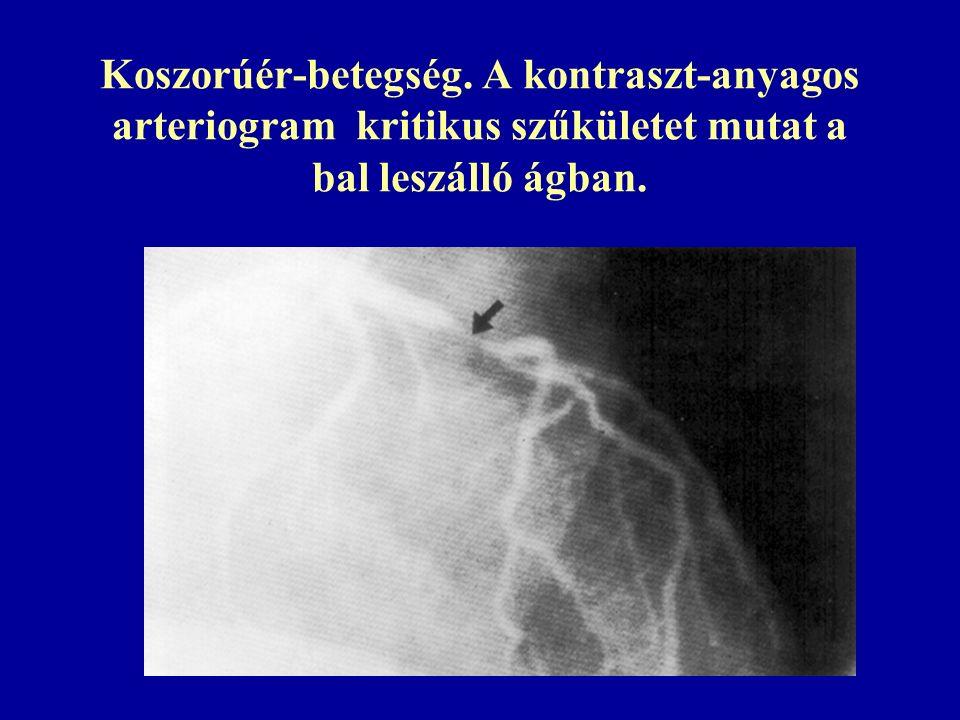 Cerebrovaszkuláris betegség.Carotis angiogram: atherosclerotikus szűkület az a.